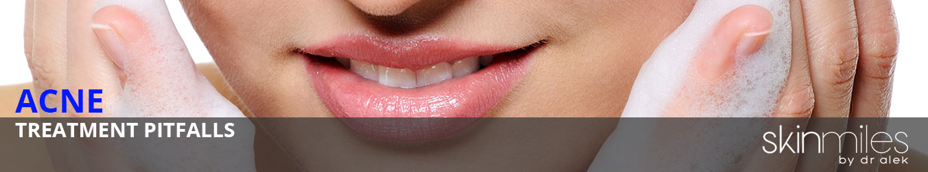 COMMON-AT-HOME-ACNE-TREATMENT-PITFALLS-BANNER-IMAGE
