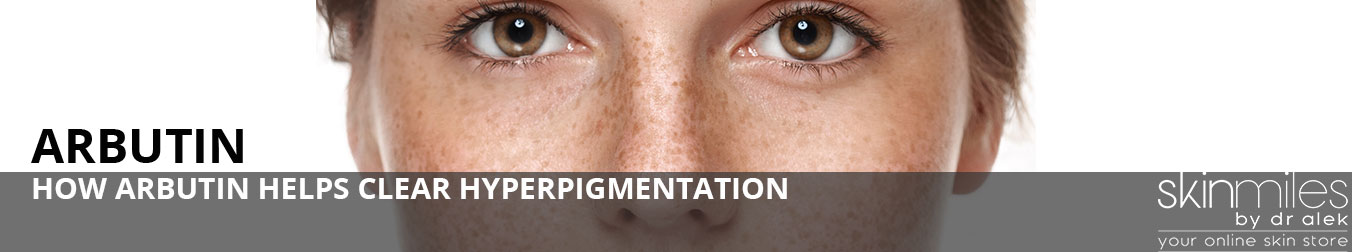 HOW-ARBUTIN-HELPS-CLEAR-HYPERPIGMENTATION-BANNER-IMAGE-2